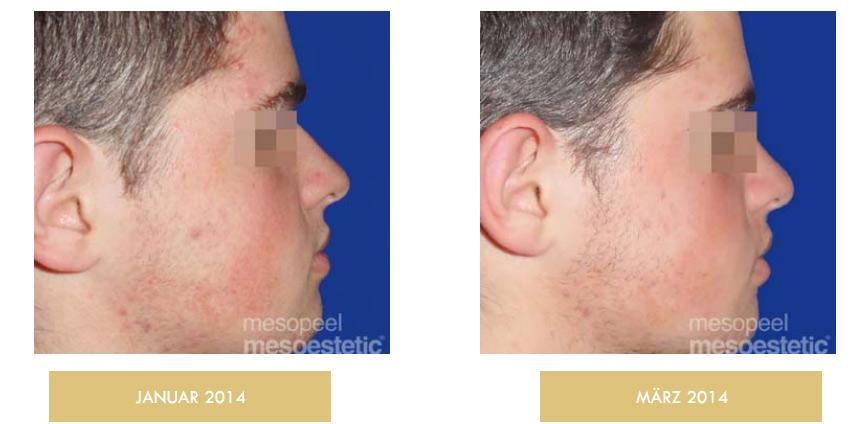 Professionelle ästhetische Behandlung – acne peel system Zürich