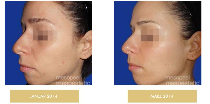 acne peel system zurich