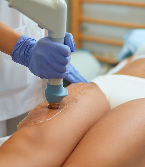 Stoßwellentherapie-gegen-Cellulite-Zürich