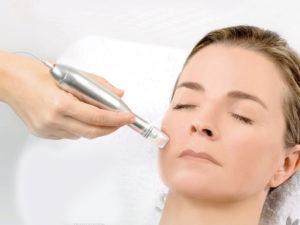 NANOPRE-Microneedeling-Zurich-KosmetikStudio